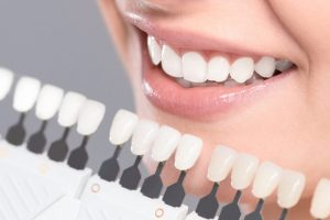 Is Activated Charcoal Good for Teeth Whitening?
